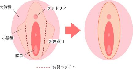 腟縮小レーザーの方法